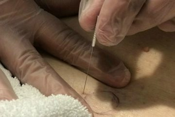 Functional Dry Needling